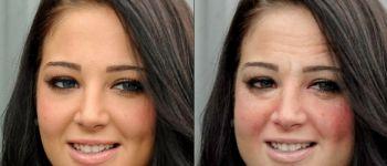 Влияние алкоголя на кожу лица: как употребление алкоголя сказывается на лице