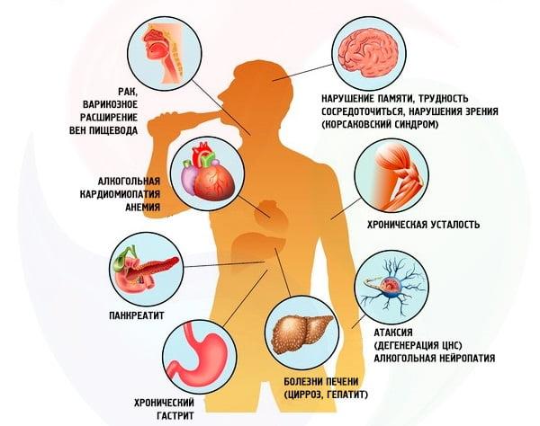 Здоровье при 3 стадии алкоголизма